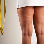 3 minerały, które pomogą ci wyeliminować cellulit