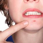 3 najczęstsze przyczyny trądziku