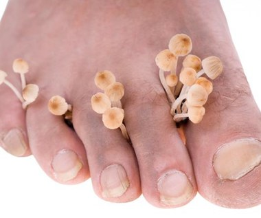 3 naturalne sposoby jak zapobiegać grzybicy stóp