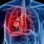 3 produkty, które pomogą oczyścić płuca