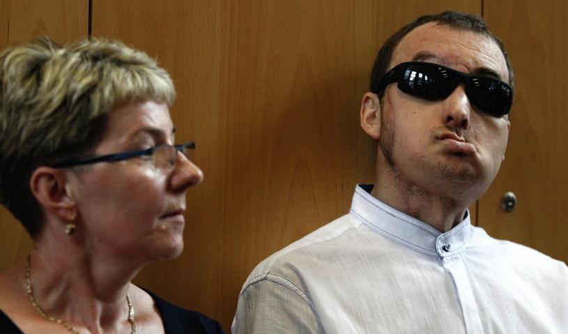 33-letni pacjent (P), któremu w maju przeszczepiono twarz w Centrum Onkologii w Gliwicach, z siostrą /Andrzej Grygiel /PAP