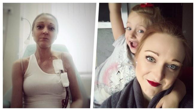 34-letnia Marta choruje na glomerulopatię typu C3 /www.siepomaga.pl/zycie-marty /