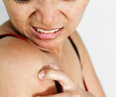 5 domowych sposobów na rogowacenie mieszkowe skóry