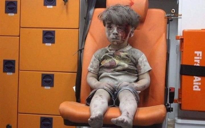 5-letni Omran Daqneesh. Chłopiec został ranny w wyniku nalotu na Aleppo /Aleppo Media Center  /