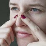 5 skutecznych metod na pozbycie się białych zaskórników z twarzy