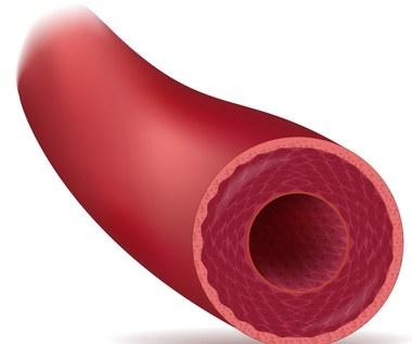 5 sposobów, które pomogą ci chronić naczynia krwionośne