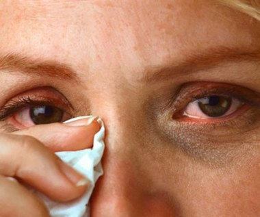5 sposobów na pozbycie się zapalenia spojówek