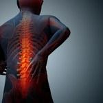 6 domowych sposobów na osteofity kości