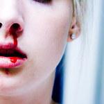 6 technik, które pomogą szybko zatrzymać krwawienie z nosa