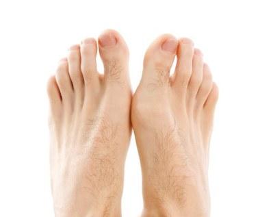 7 Domowych sposobów na obrzęk nóg