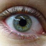 7 nieprawidłowości okolic oka, które mogą być objawem choroby