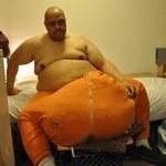 70-kilogramowa narośl na jądrach zmieniła jego życie w koszmar