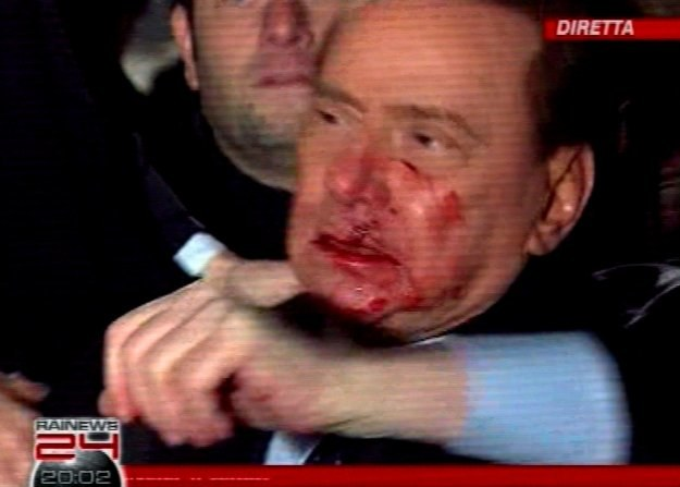 73-letni szef włoskiego rządu został zaatakwoany w niedzielę /AFP