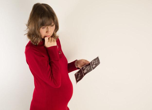 78 proc. kobiet boi się porodu, a głównym powodem ich lęków jest strach przed bólem. /123RF/PICSEL