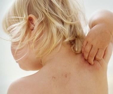 8 naturalnych metod leczenia egzemy