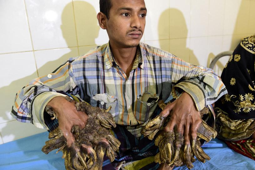 Abul Bajandar z naroślami na dłoniach /AFP