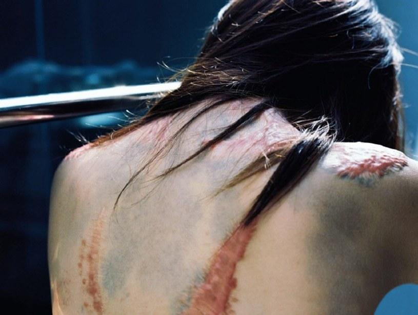 Aby usunąć blizny, Zhou musiałaby przejść operację plastyczną /CEN    /East News