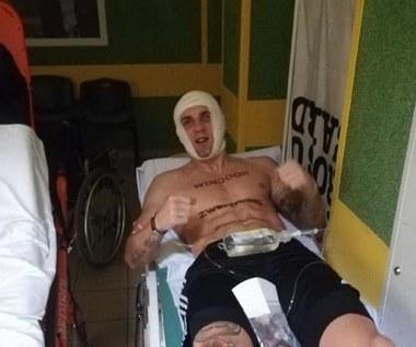 Adam Balski złamał szczękę. Pięściarz opublikował zdjęcia ze szpitala