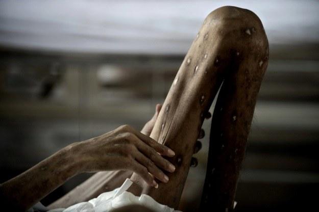 """AIDS sprawia, że zwyczajne przeziębienia mogą być śmiertelne. Zdjęcie pochodzi z tajlandzkiej """"Świątyni AIDS"""", gdzie pomaga się najciężej chorym /AFP"""