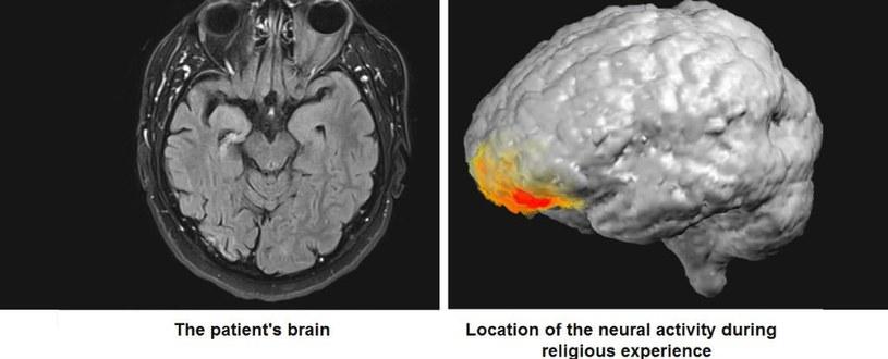 Aktywność mózgowa podczas religijnych doświadczeń /materiały prasowe