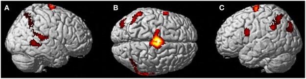 Aktywność mózgu podczas wizualizacji własnego ciała przez kobietę doświadczającą OOBE /materiały prasowe
