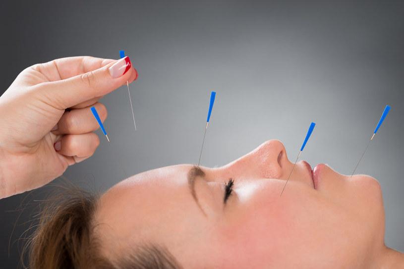 Akupunktura /©123RF/PICSEL