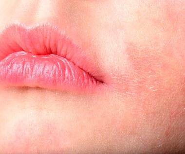 Alergia na słońce: Jak sobie z nią radzić?