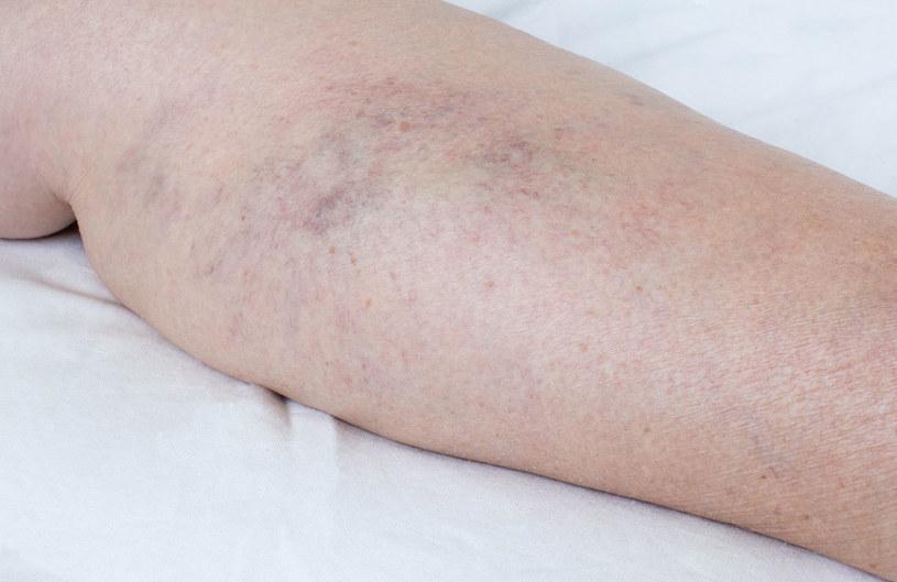 Alergia sprzyja zaburzeniom rytmu serca oraz problemami z krążeniem /123RF/PICSEL
