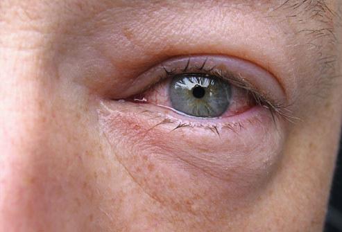 Alergiczne zapalenie spojówek /© Photogenica