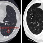 Algorytm Google wykrywa raka płuc lepiej niż lekarze