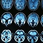 Alzheimer może zostać przeniesiony podczas niektórych procedur medycznych?
