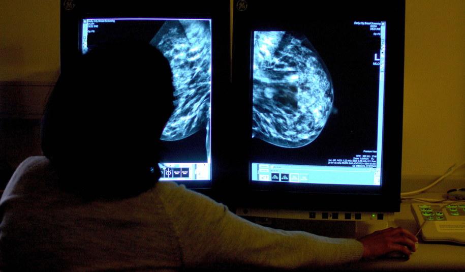 Analiza badania mammografem (zdjęcie ilustracyjne) /Rui Vieira    /PAP/EPA