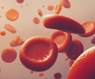 Anemia - jakie wyniki badań na nią wskazują?