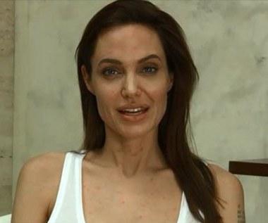 Angelina Jolie ma ospę