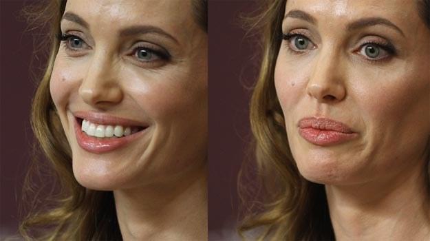 Angelina Jolie: Po operacji ryzyko zachorowania na raka piersi spadło u niej z 87% do poniżej 5%. /Getty Images/Flash Press Media