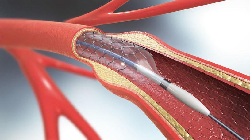 Angioplastyka /©123RF/PICSEL