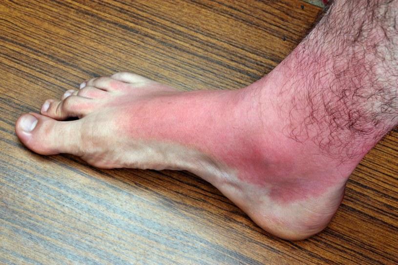 Antybiotyki w połączeniu ze słońcem to nie tylko ryzyko poparzeń, ale też onycholizy /123RF/PICSEL