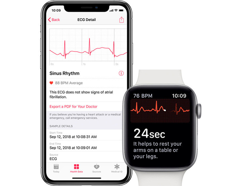 Apple Watch i funkcja EKG /materiały prasowe