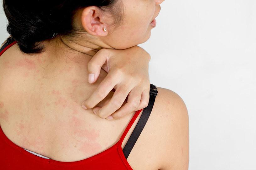 Atopowe zapalenie skóry może objawiać się na wiele sposobów /123RF/PICSEL