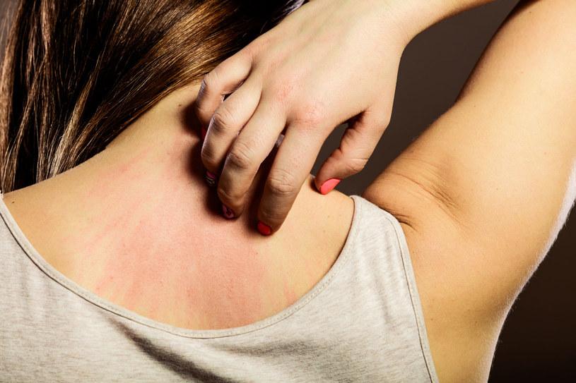 Atopowe zapalenie skóry może uaktywnić się w dorosłym życiu /123RF/PICSEL