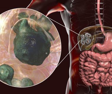 Bąblowica: Przyczyny, objawy i leczenie