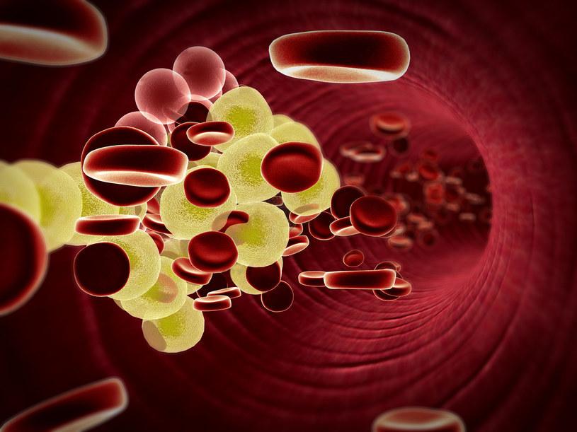 Badaj regularnie poziom cholesterolu (LDL) /123RF/PICSEL
