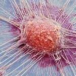Badania genomu nowotworów. Pora wrócić do klinik?
