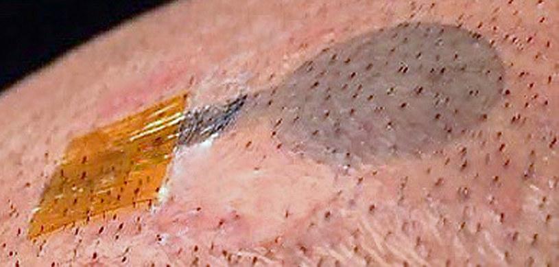 Badania mogą być naprawdę długotrwałe - tatuaż umożliwia odrośnięcie włosom w miejscu, gdzie został on umieszczony /Francesco Greco / TU Graz /East News