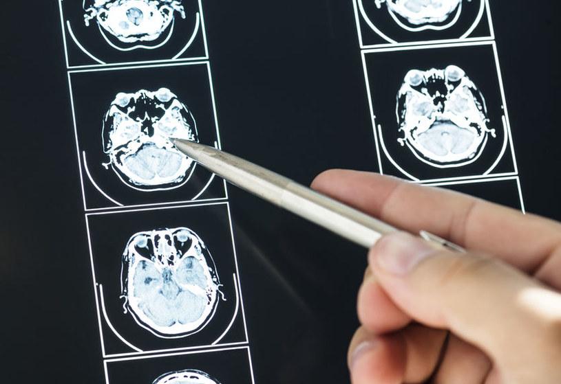 Badania mózgu /©123RF/PICSEL