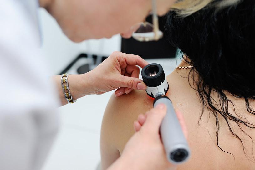 Badanie dermatologiczne; zdj. ilustracyjne /123RF/PICSEL