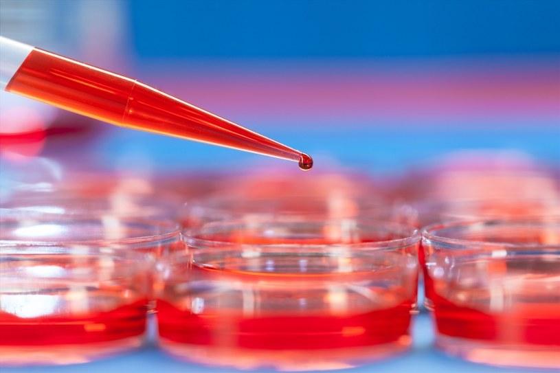 Badanie krwi zajmie ci kilka minut /©123RF/PICSEL