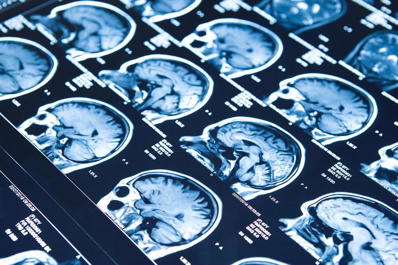 Badanie mózgu nie wykazało żadnych widocznych nieprawidłowości /123RF/PICSEL