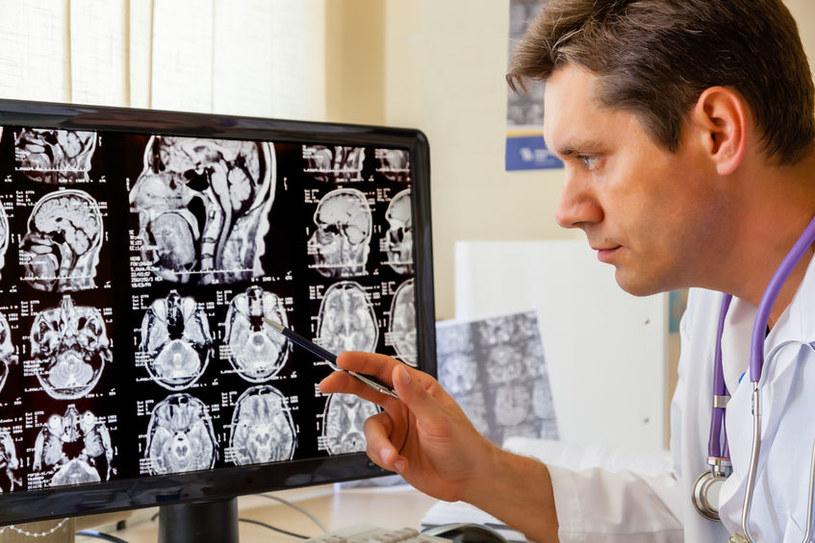 Badanie MRI pomoże przewidzieć datę śmierci? /123RF/PICSEL