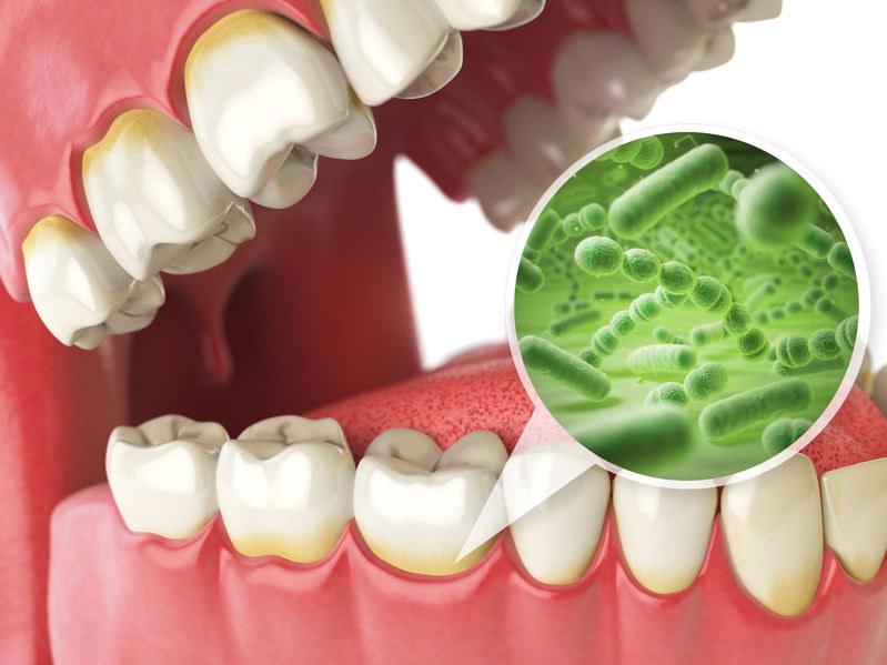 Bakterie w jamie ustnej /©123RF/PICSEL